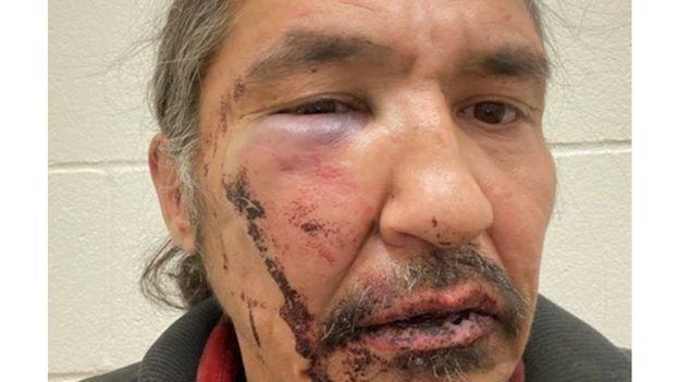 جنجال کتک زدن شهروند بومی توسط پلیس کانادا، نخست وزیر کانادا: شوک آور و بی رحمانه